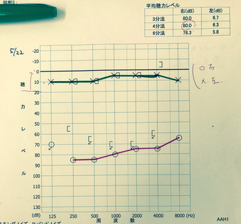 20170522聴力検査