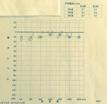 20170619聴力検査