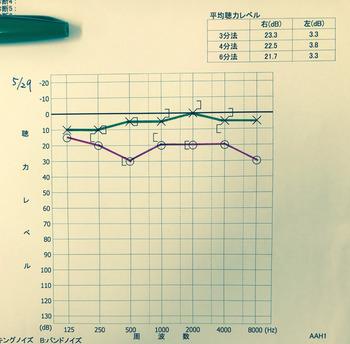 20170529聴力検査