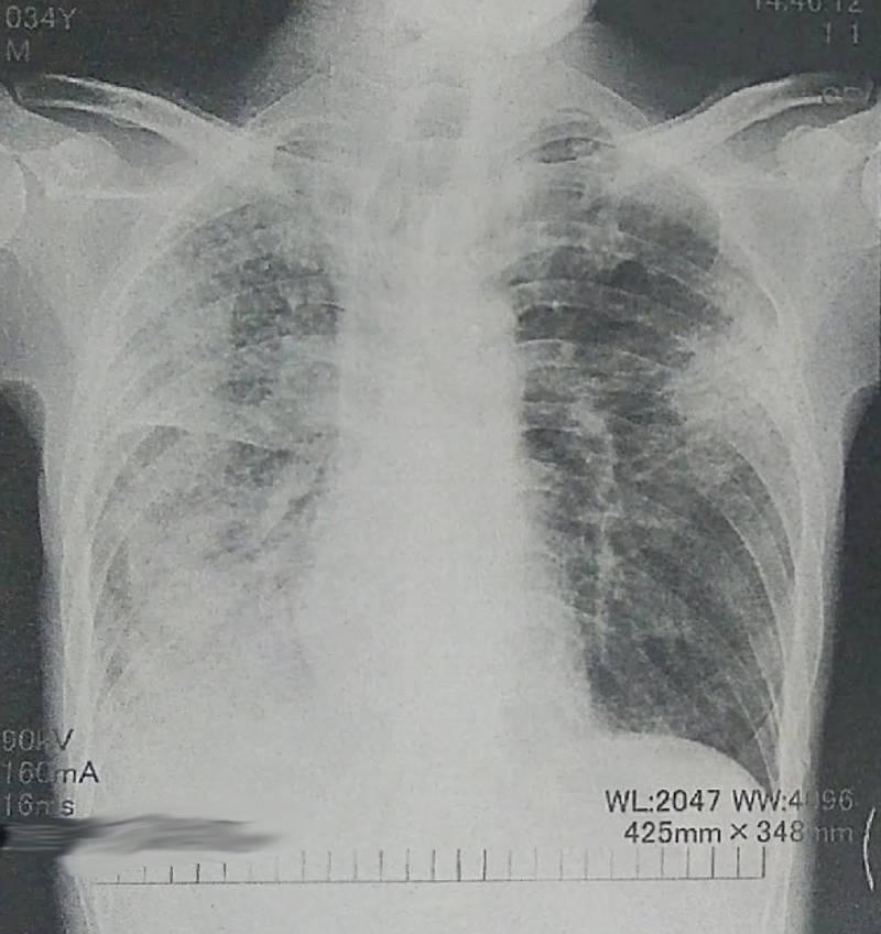 間質性肺炎のレントゲン画像