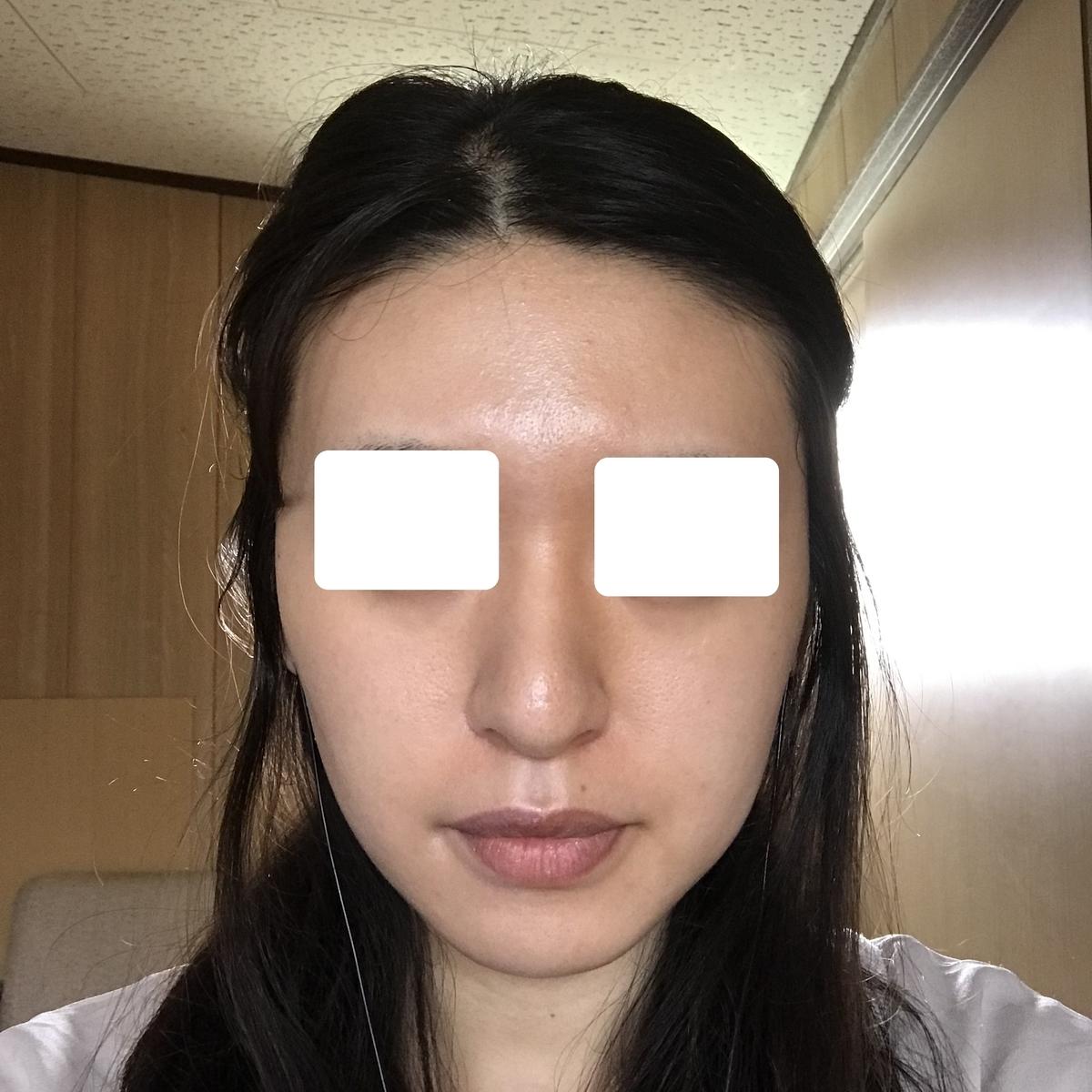 f:id:kimchikuwa:20200417151902j:plain