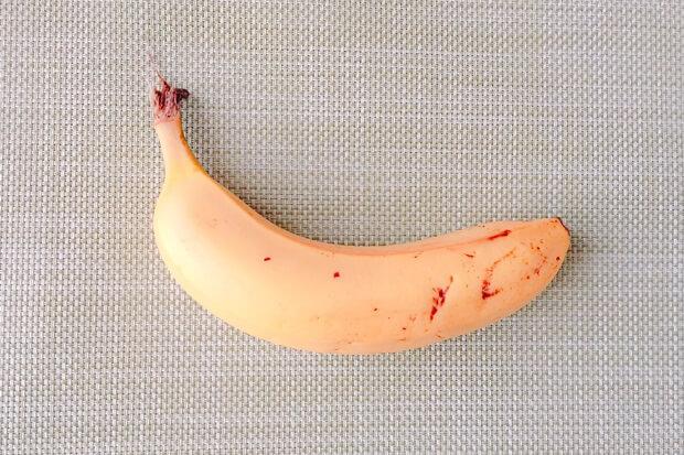 バナナの皮の効果効能