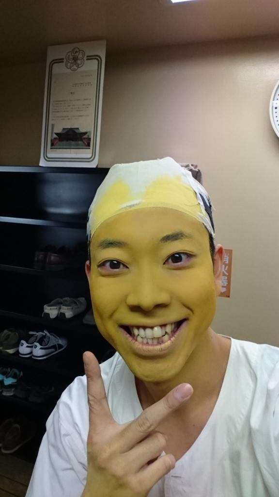 f:id:kingentei-bakyu:20170212215208j:plain