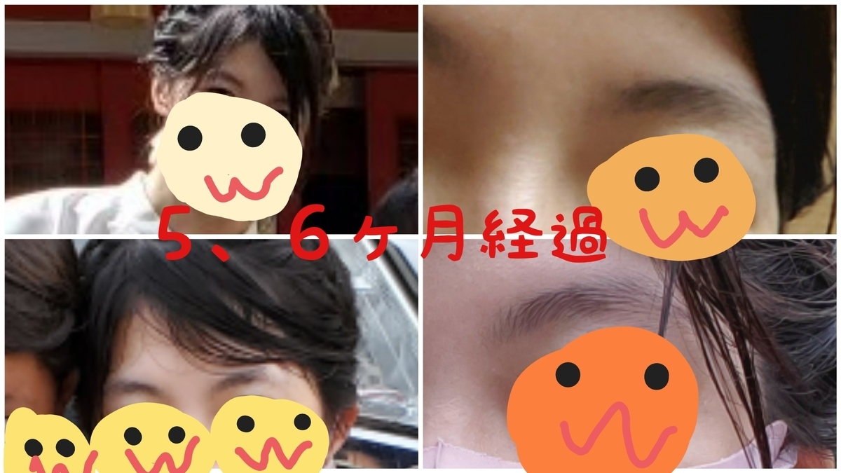 f:id:kininaru-mei:20210419103617j:plain