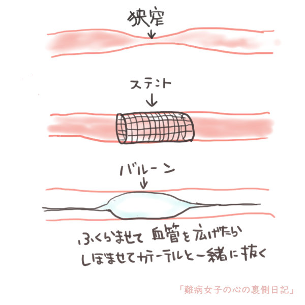 f:id:kinoshitakonoki:20190704112037j:plain