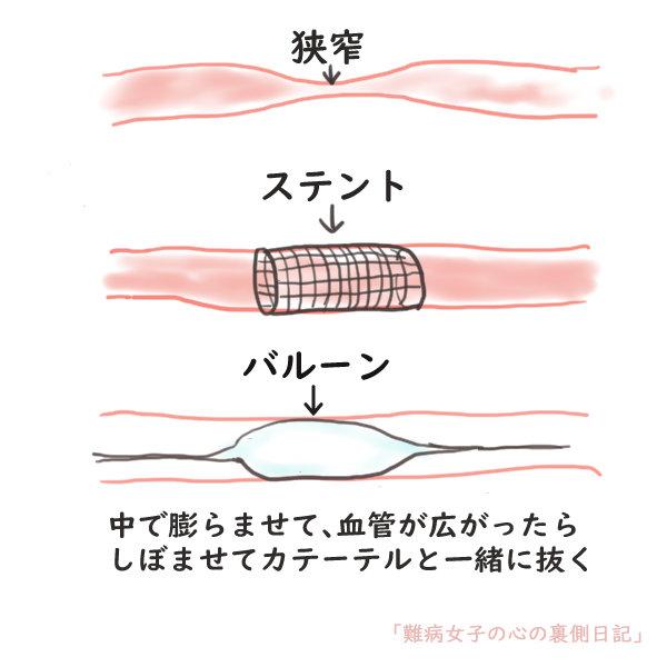 f:id:kinoshitakonoki:20200924143507j:plain