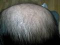 2012,3,30 後頭部。放射線の細胞破壊が凸凹の荒野に(脱毛)。