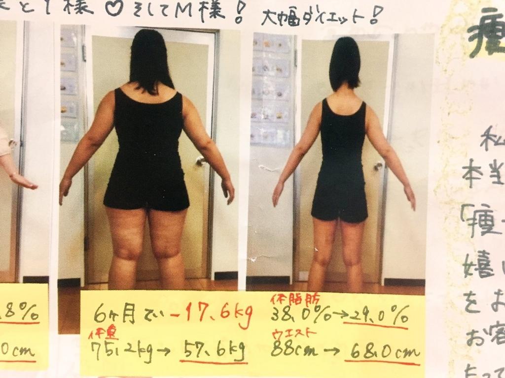 f:id:kisokoji:20170829141859j:plain:w300