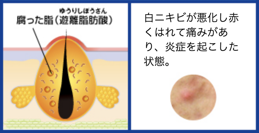 f:id:kisuke_blog:20181117123038p:plain