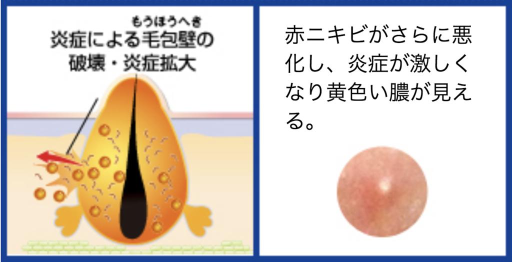 f:id:kisuke_blog:20181117123556p:plain
