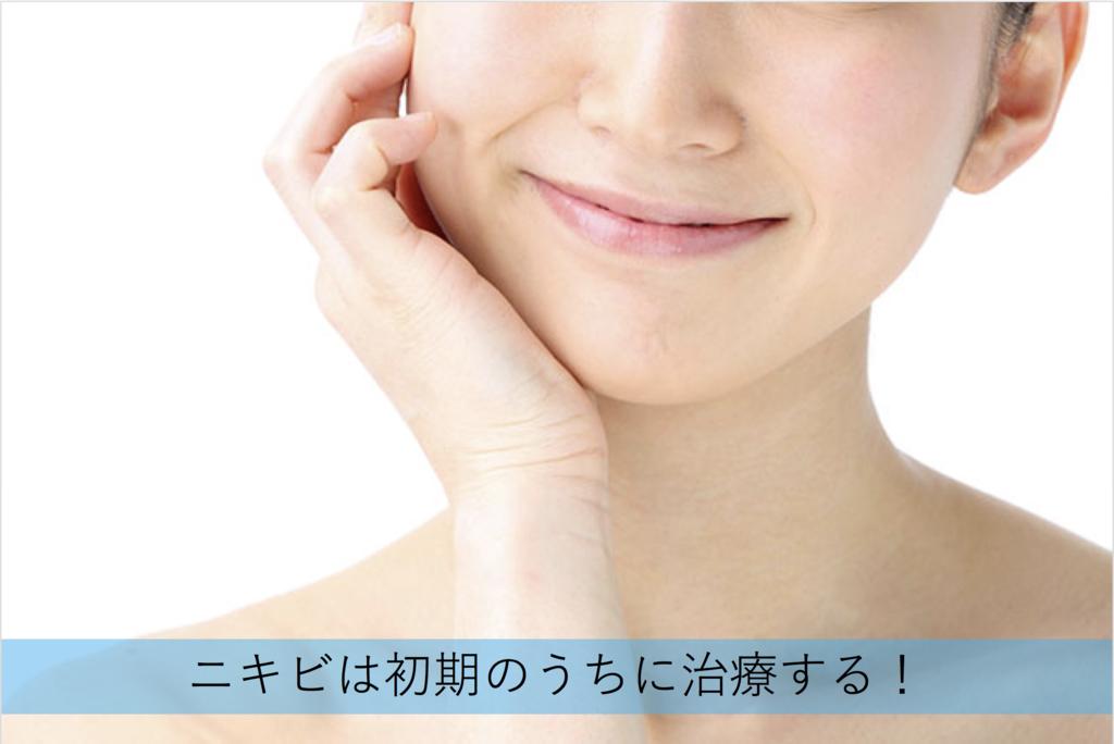 f:id:kisuke_blog:20181117140620p:plain