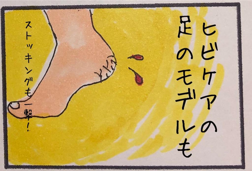 f:id:kitano-stop:20181204211302j:image