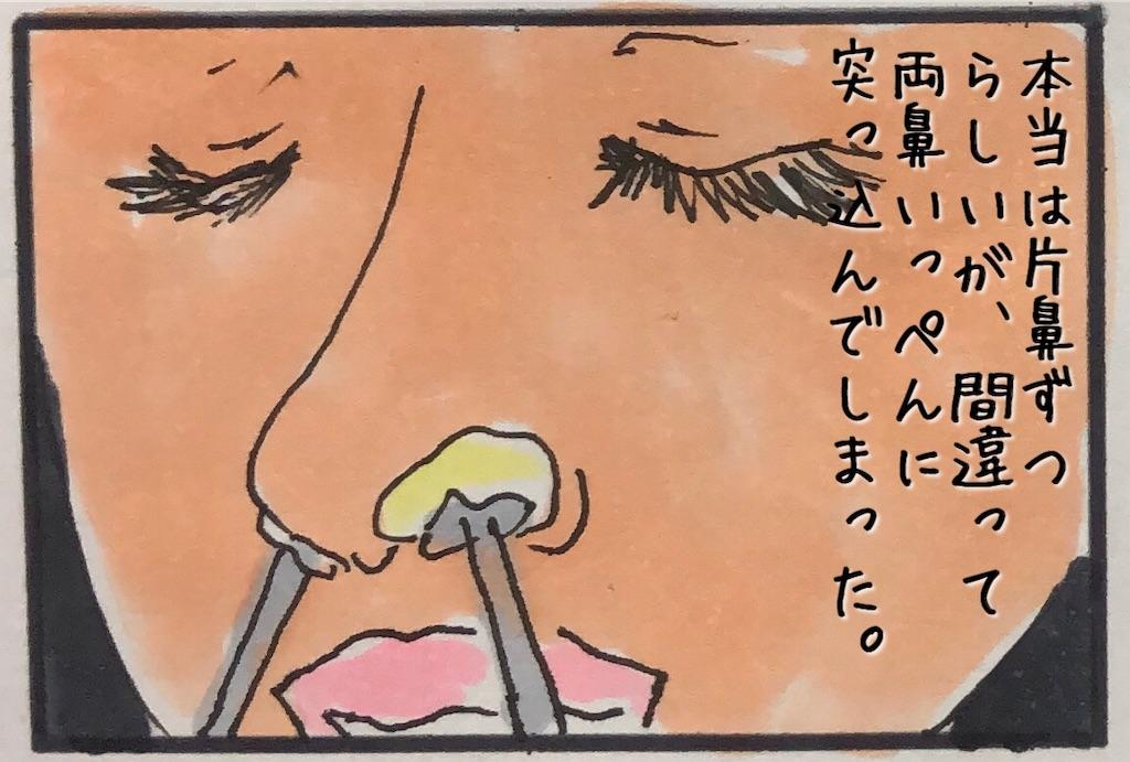 f:id:kitano-stop:20190901234023j:image