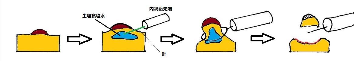 f:id:kite-cafe:20210915080344j:plain