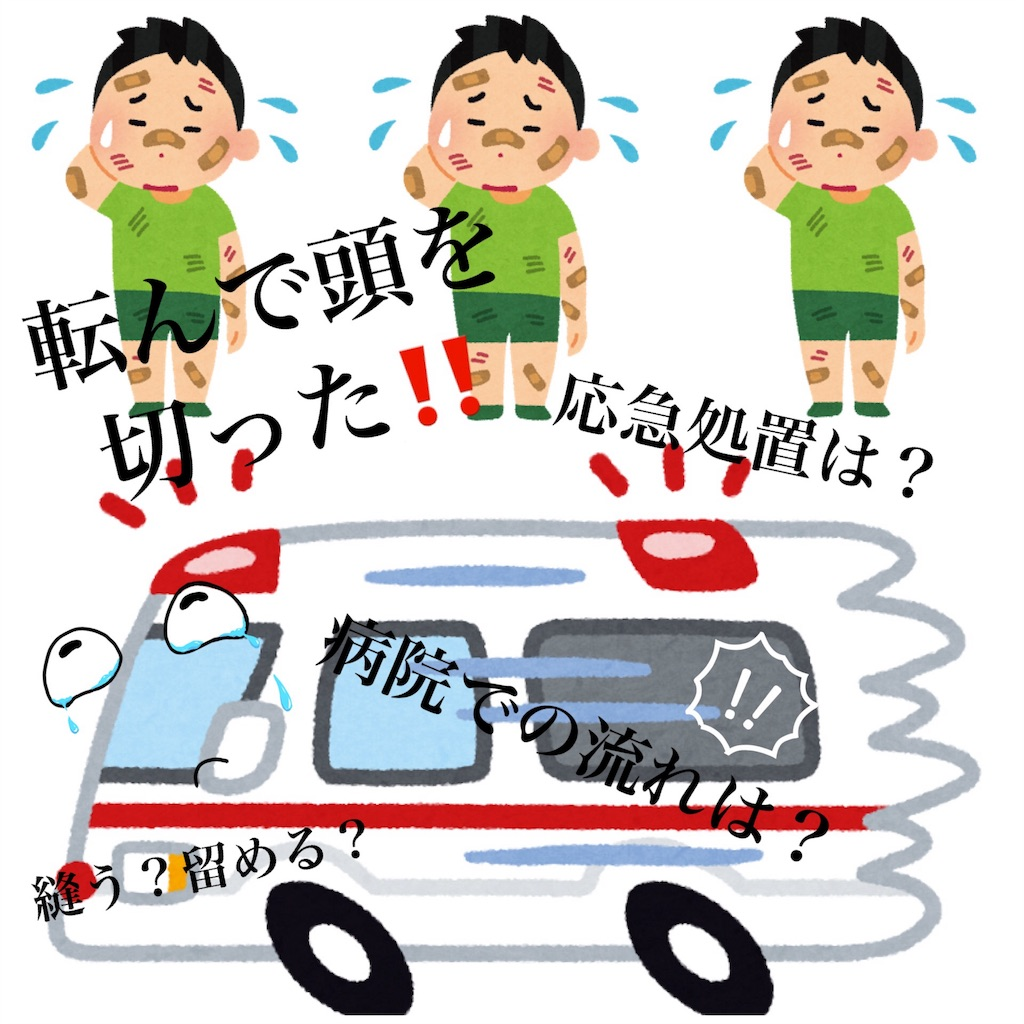 f:id:kiwi-chan:20171120145241j:image