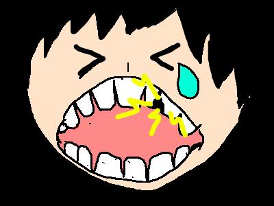 虫歯を放置すると・・・