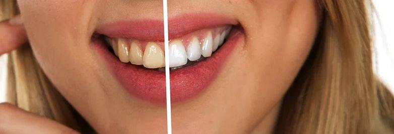 着色汚れが気になるなら、歯磨き粉で対策