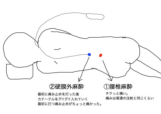 f:id:kochikochik2:20171105235947j:plain