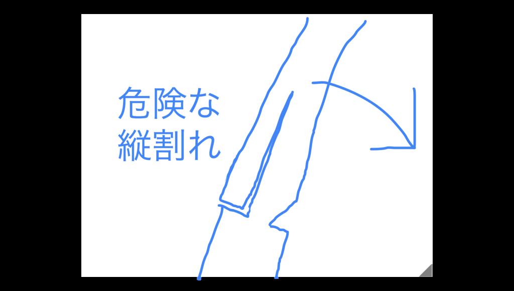 f:id:koidekonbu:20170425201156p:plain