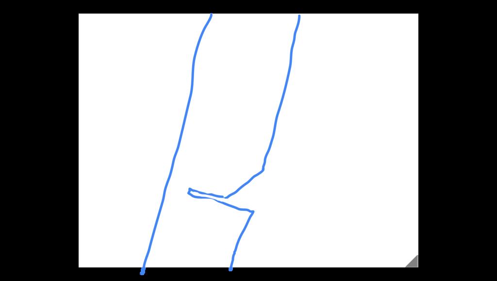 f:id:koidekonbu:20170426192229p:plain