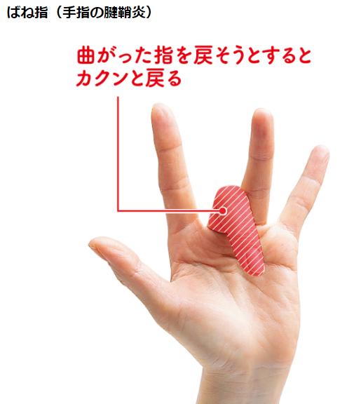 f:id:koizumitougouiryou:20190912173656p:plain