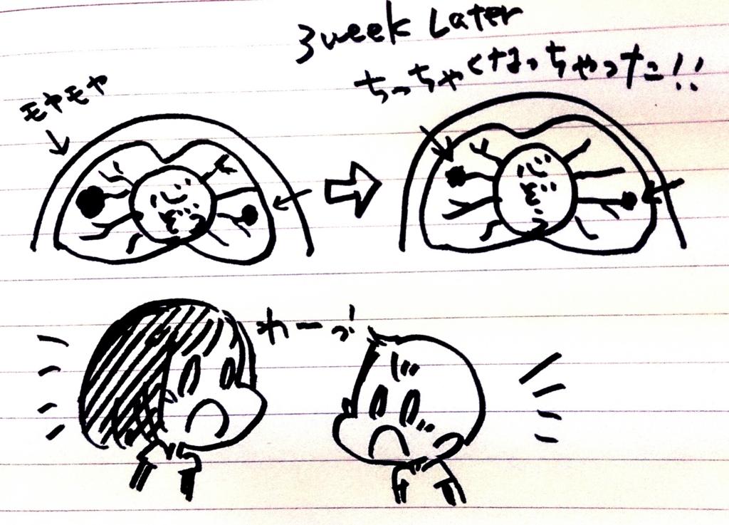 f:id:komugi1222:20160721213546j:plain
