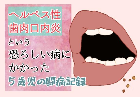 ヘルペス ヘルペス性歯肉口内炎 子ども 病気 イラスト