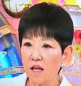 和田アキ子 顔 整形 画像