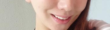 唇 ヒアル 症例 フィラー