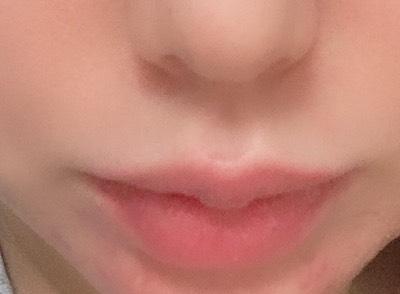 唇 唇フィラー ヒアルロン酸 韓国 整形