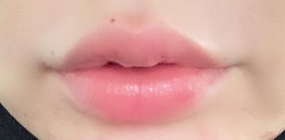 唇 唇フィラー 唇ヒアルロン酸 ヒアル 韓国 整形