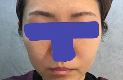 シャネル注射 美容美肌 術前の画像