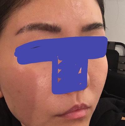 シャネル注射 美容 美肌 韓国