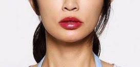 唇 ヒアルロン酸 症例