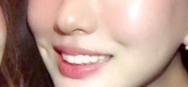 韓国 ルフェ 唇アートメイク 施術前の写真