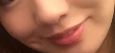 韓国 ルフェ 唇アートメイク 施術前の画像