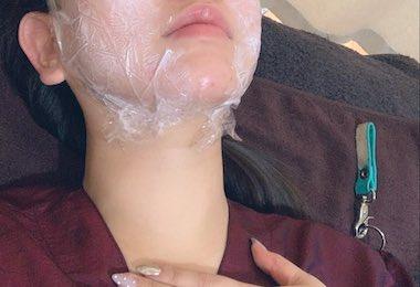 ウルトラセルQプラスの麻酔中画像