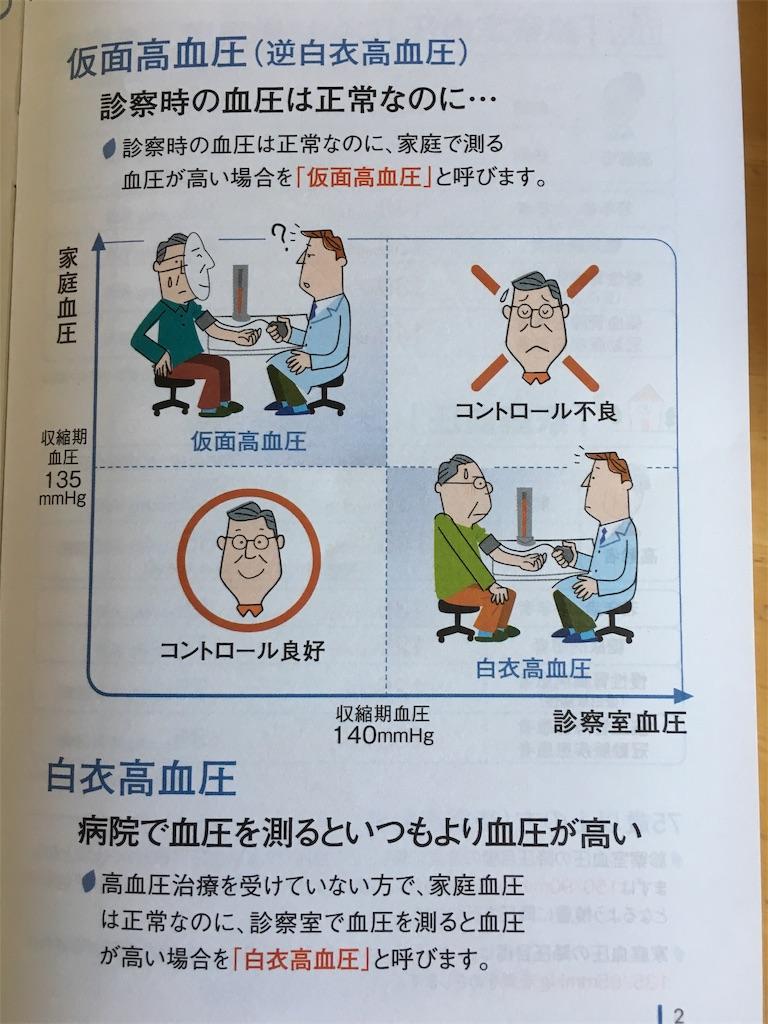 f:id:kosamebitaki733:20191009084207j:image