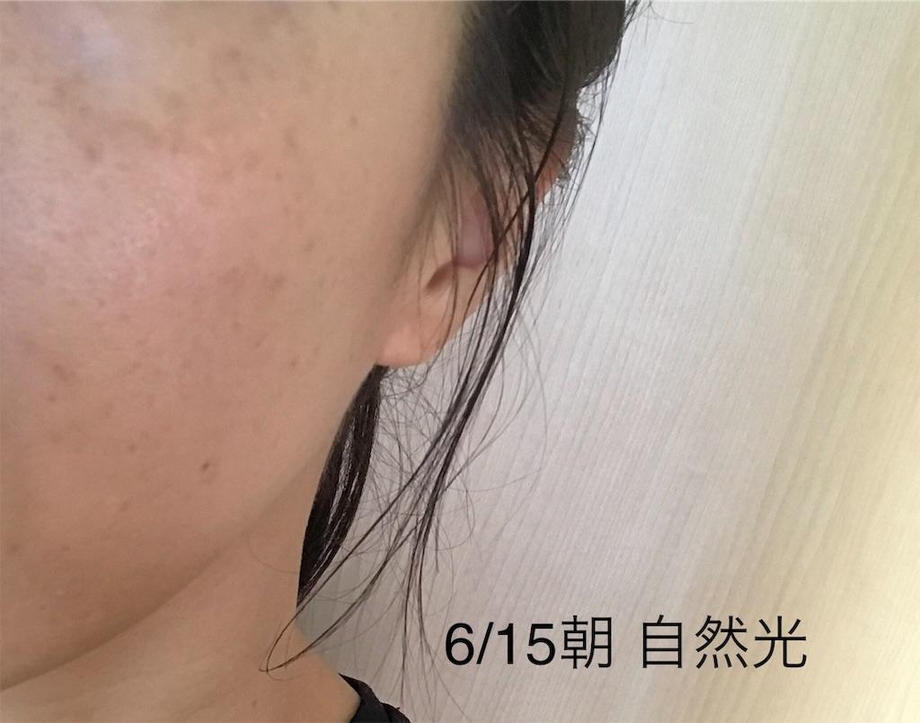 f:id:koshikakeol:20190702184137j:image