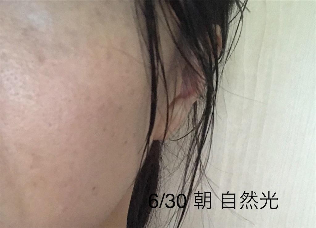 f:id:koshikakeol:20190702184307j:image