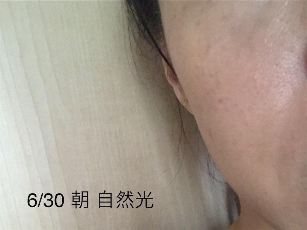 f:id:koshikakeol:20190702184311j:image
