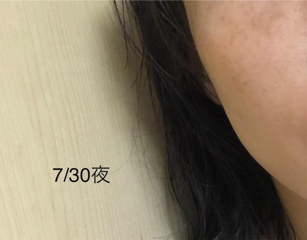 f:id:koshikakeol:20190730213727j:image