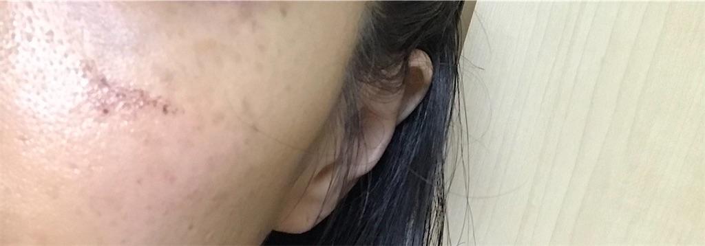 f:id:koshikakeol:20200214200537j:image