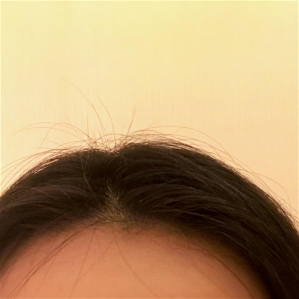 f:id:koshikakeol:20200216160426j:image