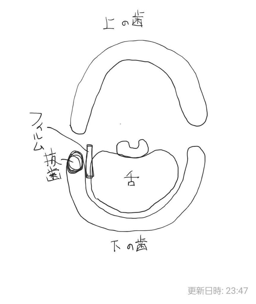 f:id:kotaroujapan:20181203235111j:plain
