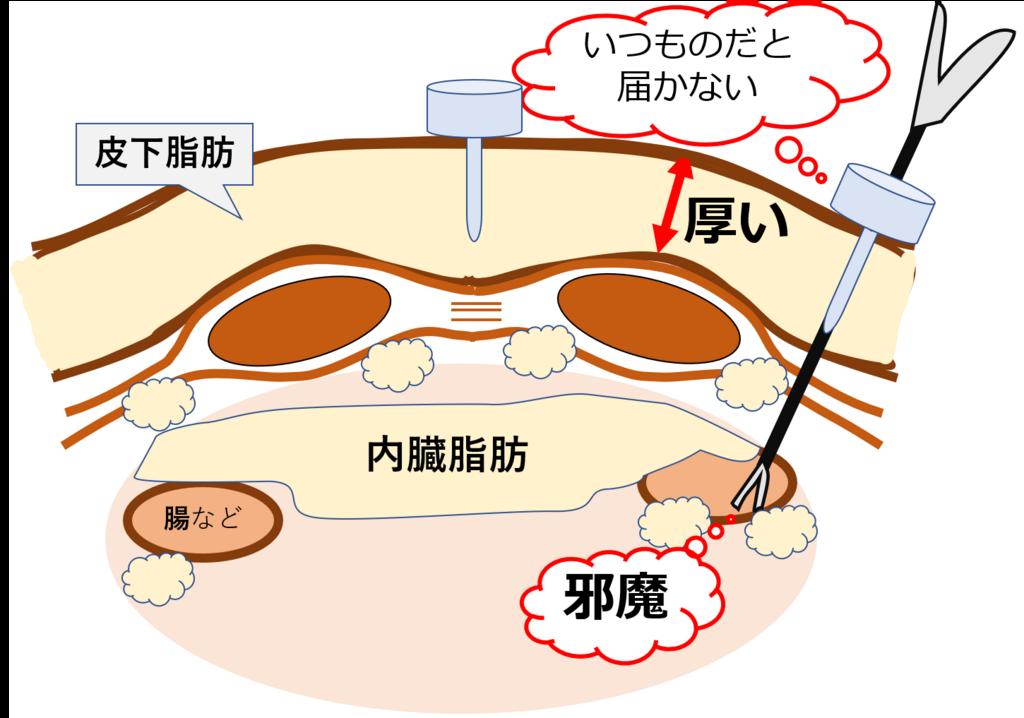 f:id:kotonohanohako30:20180503174443p:plain