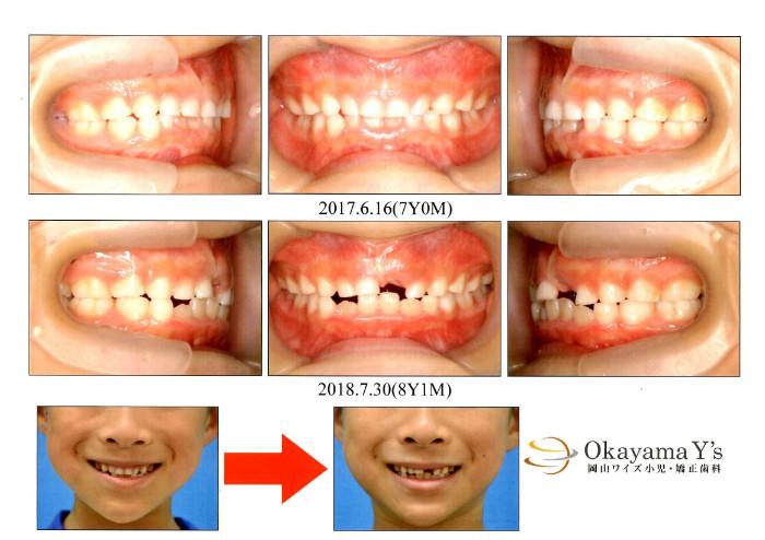 岡山ワイズ小児 矯正歯科