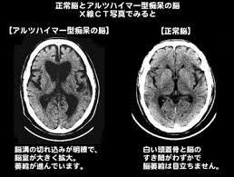 f:id:koushuya:20170806073556j:plain