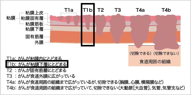 f:id:koushuya:20190321235240p:plain