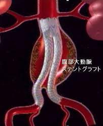 f:id:koushuya:20191011235928j:plain